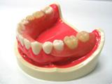 バネの目立たない入れ歯3